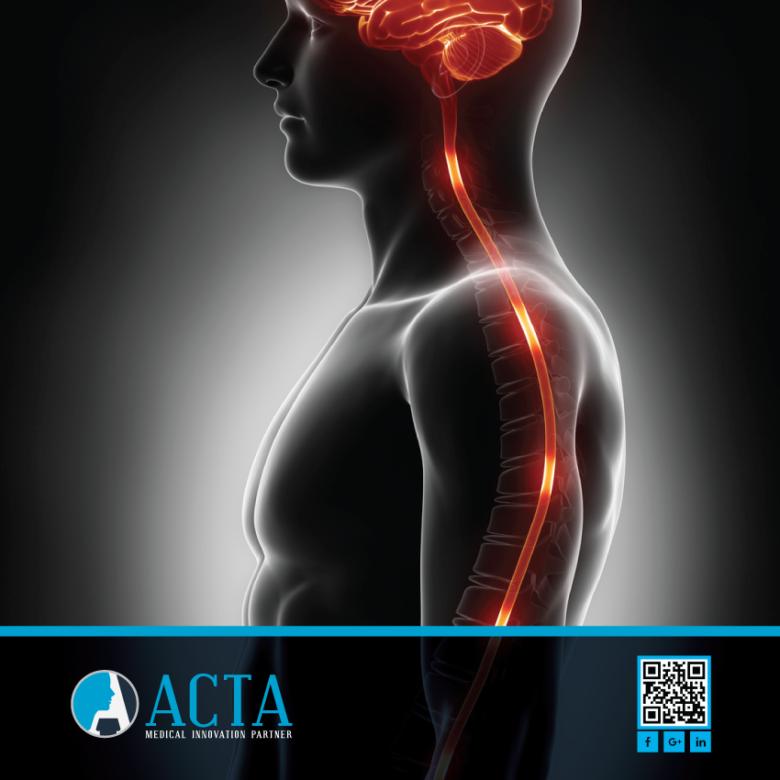 Monitoraggio neurofisiologico