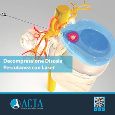 Intervento per ernia del disco con tecnica laser: la decompressione discale percutanea con laser (PLDD)