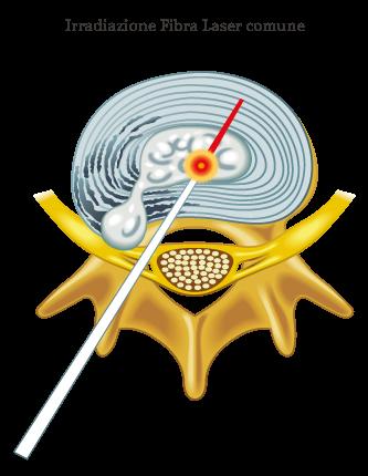 adlf-fibra-comune